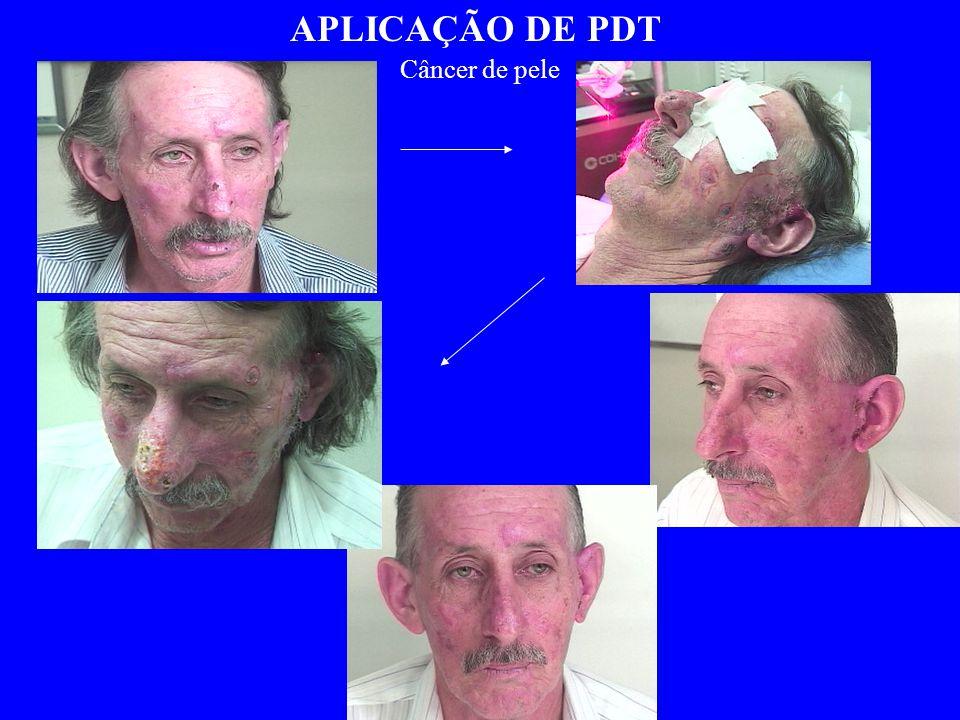 APLICAÇÃO DE PDT Câncer de pele