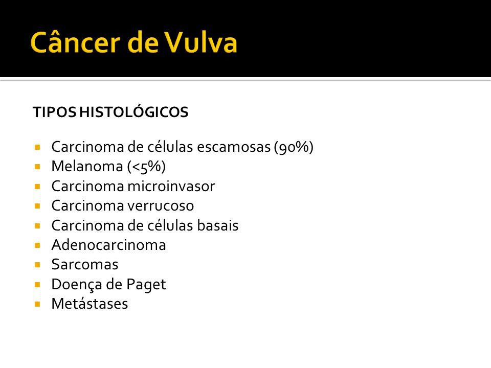 TIPOS HISTOLÓGICOS  Carcinoma de células escamosas (90%)  Melanoma (<5%)  Carcinoma microinvasor  Carcinoma verrucoso  Carcinoma de células basai