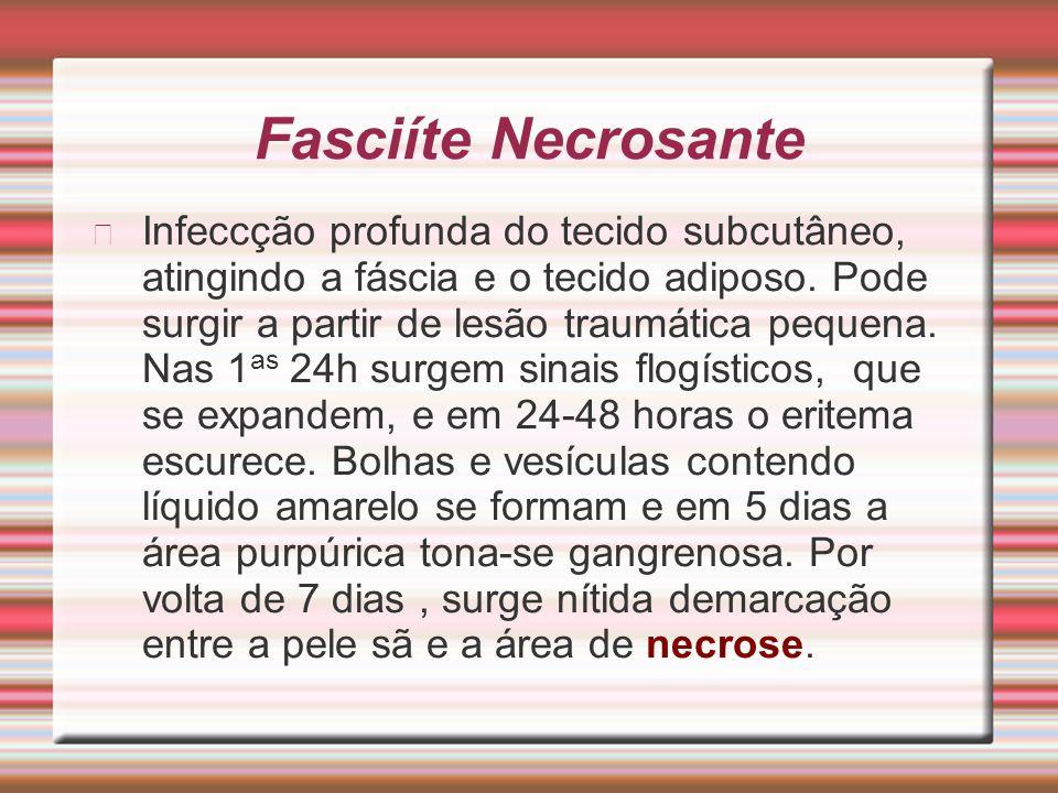 Fasciíte Necrosante Infeccção profunda do tecido subcutâneo, atingindo a fáscia e o tecido adiposo. Pode surgir a partir de lesão traumática pequena.