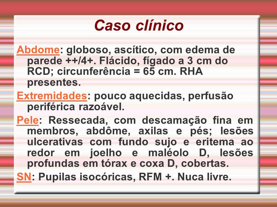 Caso clínico Abdome: globoso, ascítico, com edema de parede ++/4+. Flácido, fígado a 3 cm do RCD; circunferência = 65 cm. RHA presentes. Extremidades: