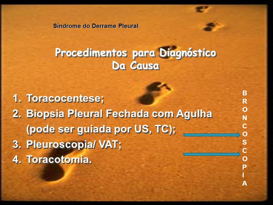 Síndrome do Derrame Pleural Procedimentos para Diagnóstico Da Causa Procedimentos para Diagnóstico Da Causa 1.Toracocentese; 2.Biopsia Pleural Fechada