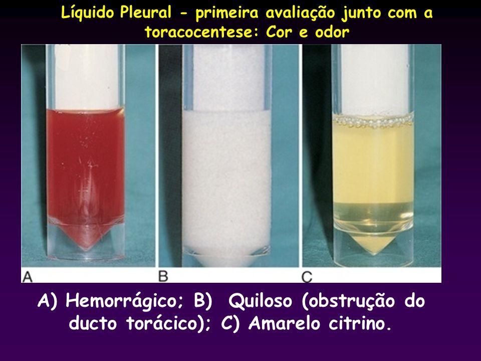 Líquido Pleural - primeira avaliação junto com a toracocentese: Cor e odor A) Hemorrágico; B) Quiloso (obstrução do ducto torácico); C) Amarelo citrin