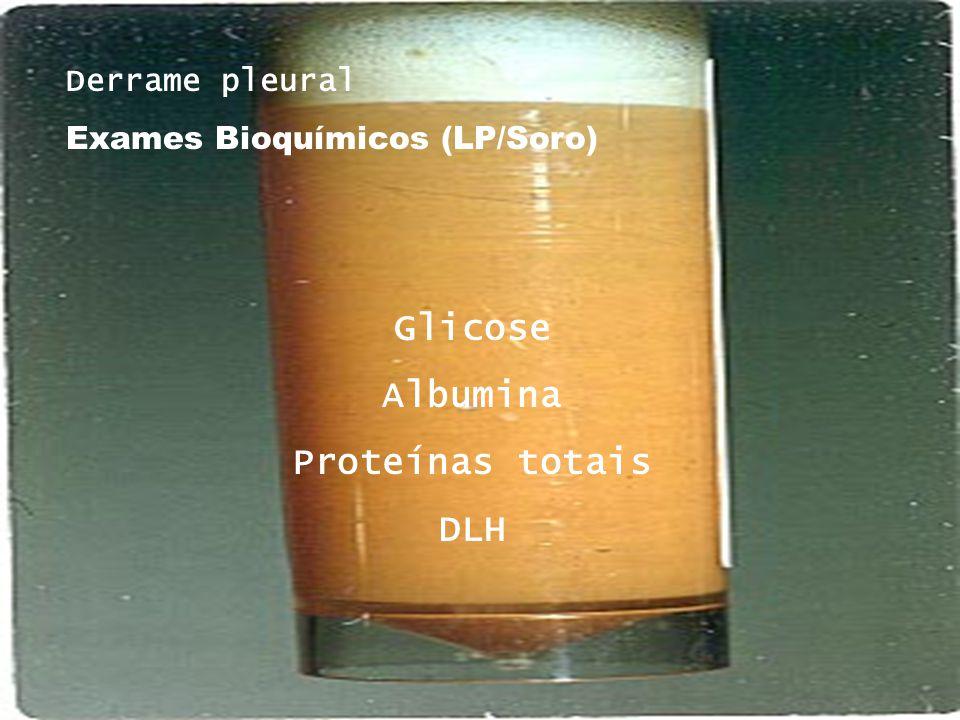 Derrame pleural Exames Bioquímicos (LP/Soro) Glicose Albumina Proteínas totais DLH