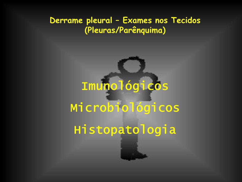 Derrame pleural – Exames nos Tecidos (Pleuras/Parênquima) Imunológicos Microbiológicos Histopatologia