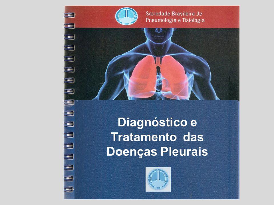 Diagnóstico da Causa da Síndrome do Derrame Pleural Prof. Dr. Cyro T. da Silva Junior