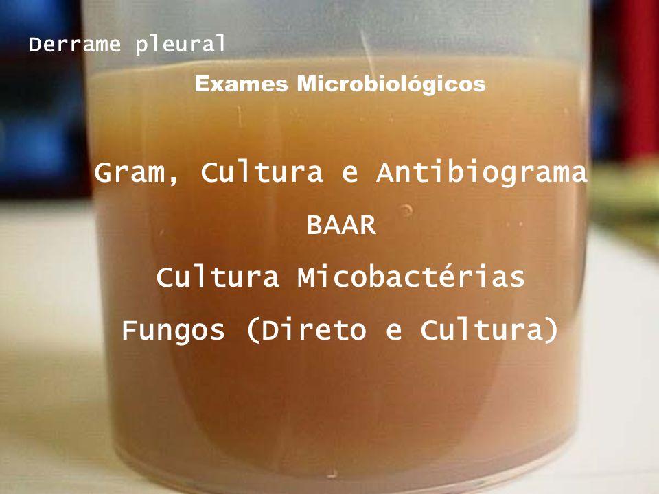 Derrame pleural Exames Microbiológicos Gram, Cultura e Antibiograma BAAR Cultura Micobactérias Fungos (Direto e Cultura)