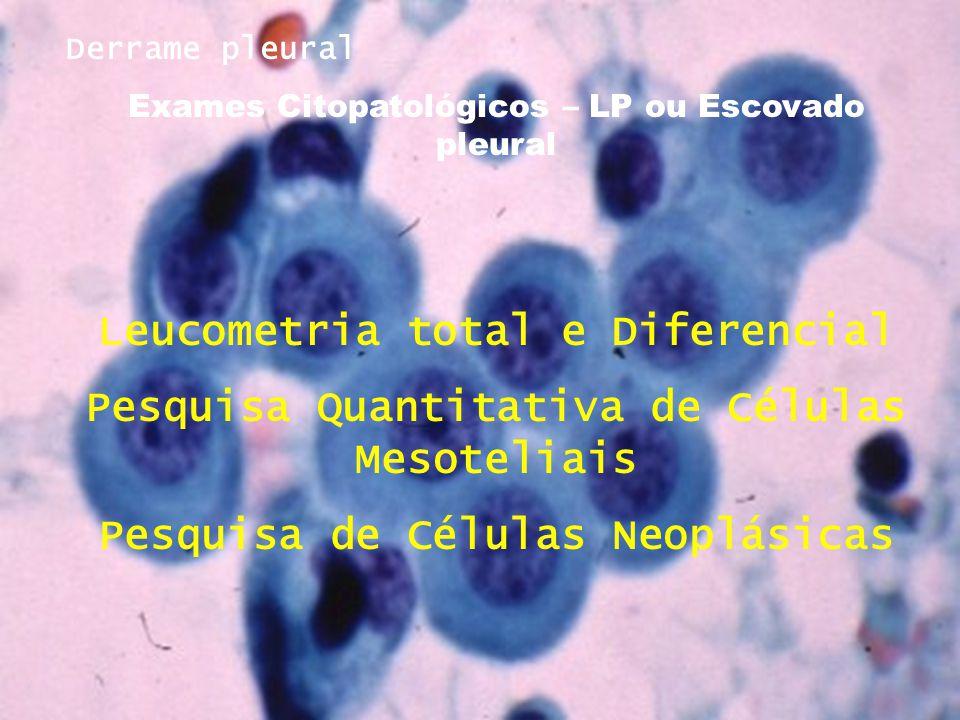 Derrame pleural Exames Citopatológicos – LP ou Escovado pleural Leucometria total e Diferencial Pesquisa Quantitativa de Células Mesoteliais Pesquisa