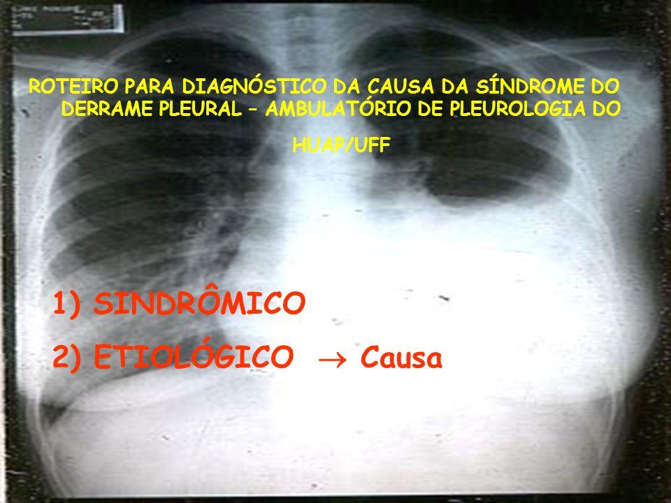 ROTEIRO PARA DIAGNÓSTICO DA CAUSA DA SÍNDROME DO DERRAME PLEURAL – AMBULATÓRIO DE PLEUROLOGIA DO HUAP/UFF 1) SINDRÔMICO 2) ETIOLÓGICO  Causa
