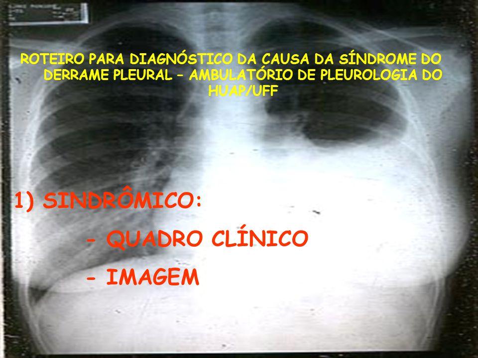 Síndrome do Derrame pleural – Exames de Imagem - Radiografia simples (PA, P, Laurell) - Ultrassonografia pleural - Tomografia computadorizada convencional com contraste - Ressonância Magnética - PET-CT *