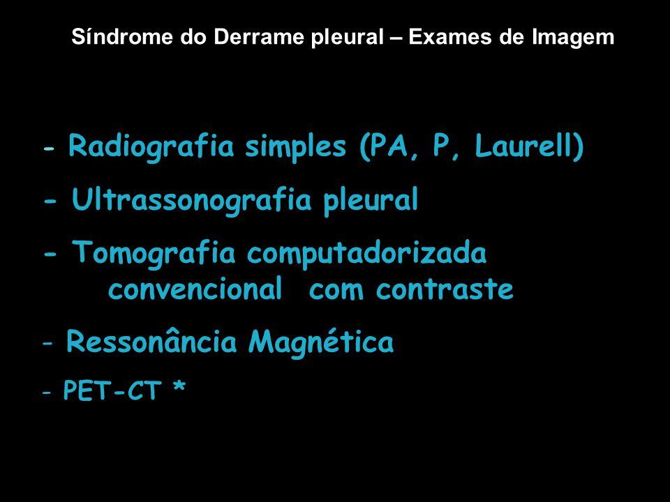Derrame pleural Exames Imunológicos Adenosina Desaminase (ADA) Interferon gama* Antígeno Carcinoembrionário (CEA) Enolase Neurônio Específica (NSE) CYFRA 21-1* * Pesquisa?