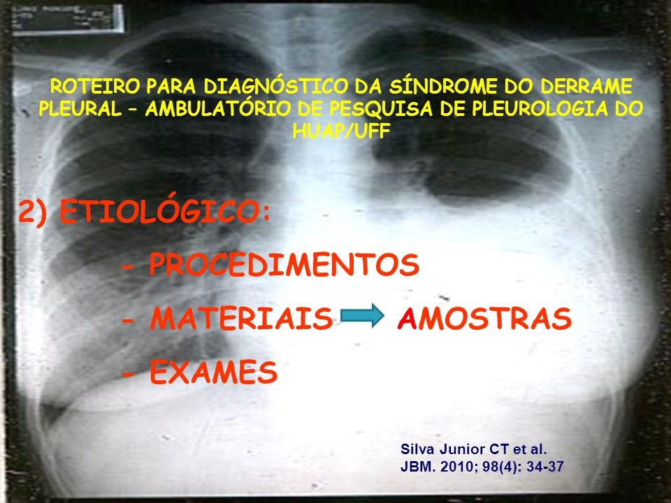 Síndrome do Derrame Pleural Procedimentos para Diagnóstico Da Causa Procedimentos para Diagnóstico Da Causa 1.Toracocentese; 2.Biopsia Pleural Fechada com Agulha (pode ser guiada por US, TC); 3.Pleuroscopia/Toracoscopia Vídeo- Assistida; 4.Toracotomia.