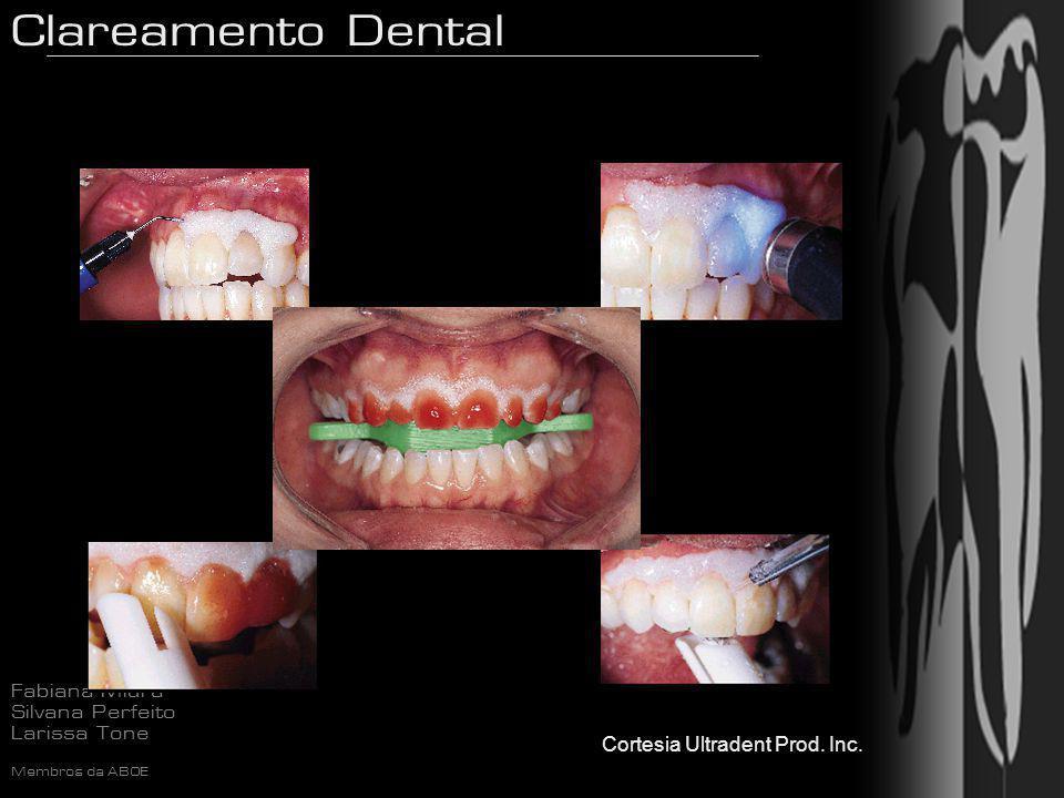 Clareamento Dental Fabiana Miura Silvana Perfeito Larissa Tone Membros da ABOE Cortesia Ultradent Prod. Inc.