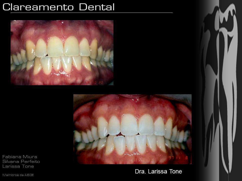 Clareamento Dental Fabiana Miura Silvana Perfeito Larissa Tone Membros da ABOE Dra. Larissa Tone