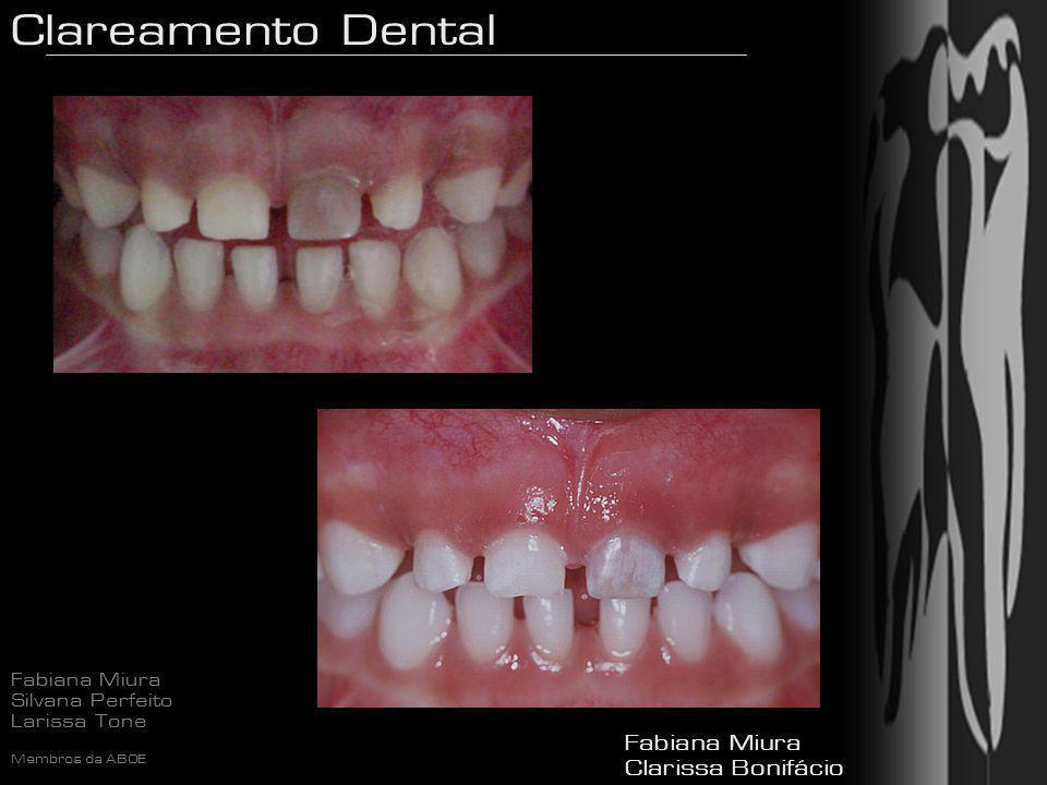 Clareamento Dental Fabiana Miura Silvana Perfeito Larissa Tone Membros da ABOE Peróxido de Hidrogênio - Utilizado em clareamento há mais de 75 anos H2O2 TECIDOS Oxigênio + Água