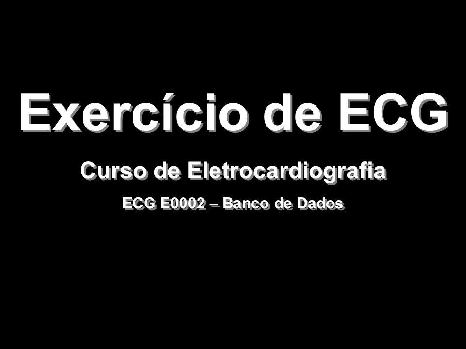 Exercício de ECG Curso de Eletrocardiografia ECG E0002 – Banco de Dados Exercício de ECG Curso de Eletrocardiografia ECG E0002 – Banco de Dados
