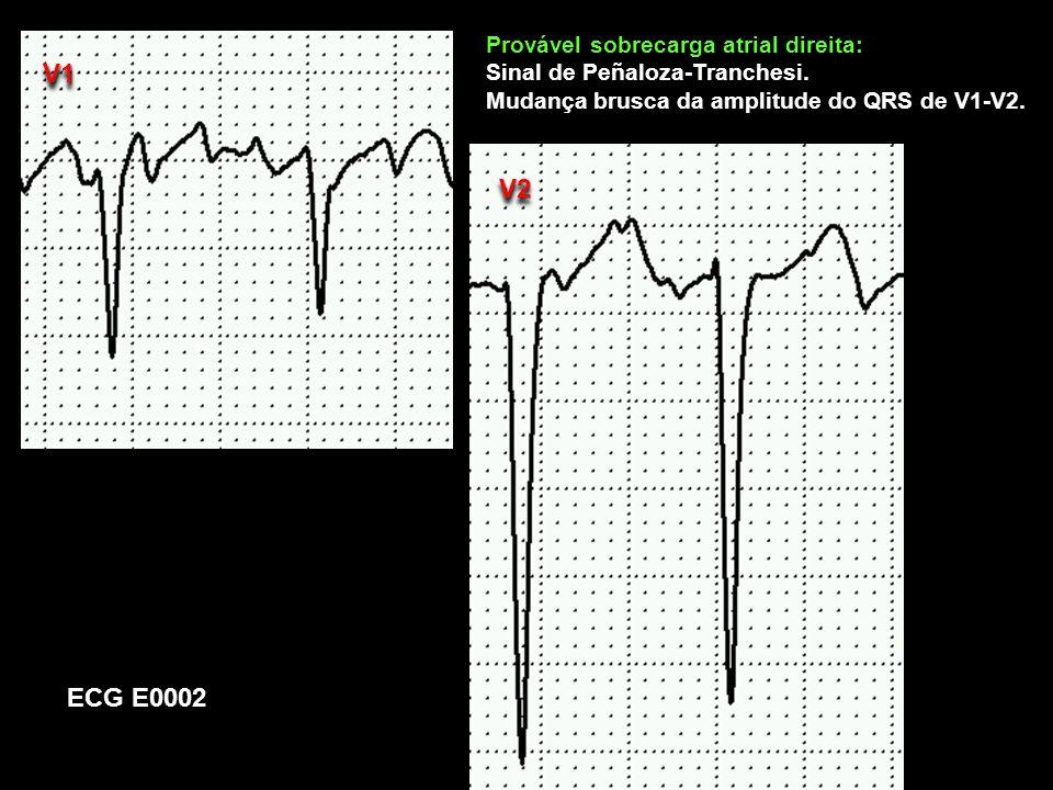 ECG E0002 V1V1 Provável sobrecarga atrial direita: Sinal de Peñaloza-Tranchesi. Mudança brusca da amplitude do QRS de V1-V2. V2V2