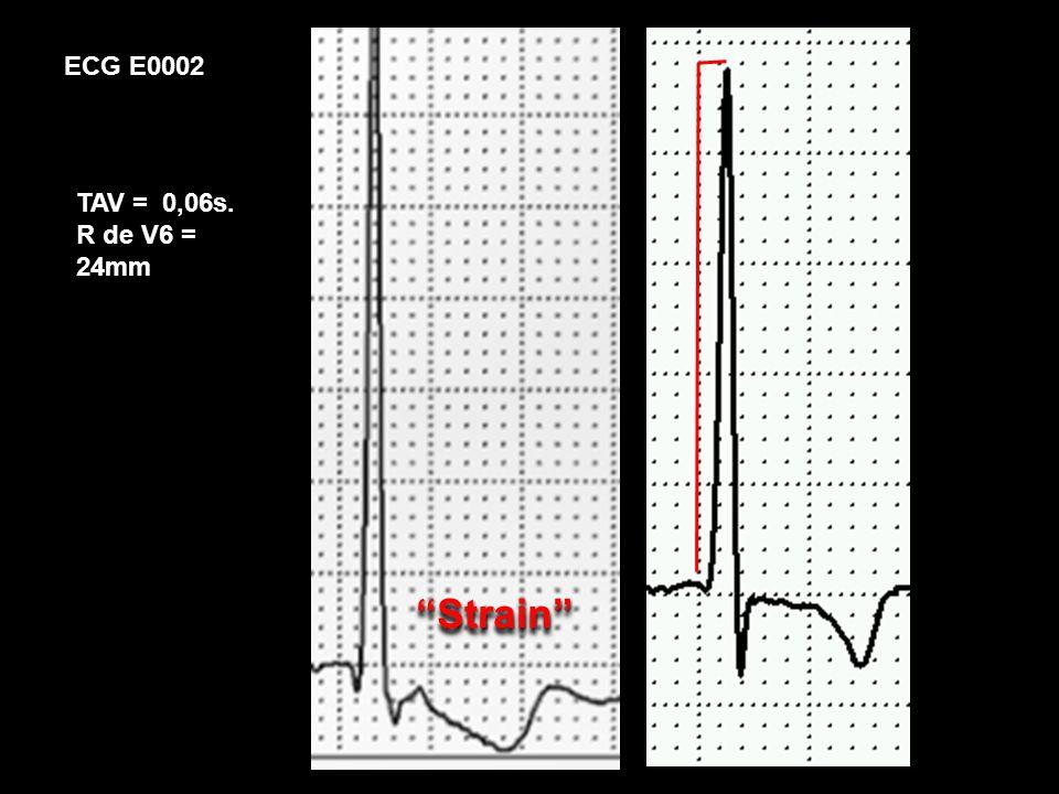 ECG E0002 TAV = 0,06s. R de V6 = 24mm Strain Strain