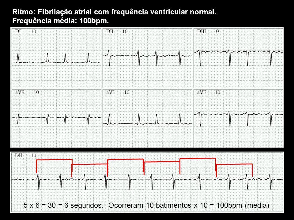 Ritmo: Fibrilação atrial com frequência ventricular normal. Frequência média: 100bpm. 5 x 6 = 30 = 6 segundos. Ocorreram 10 batimentos x 10 = 100bpm (