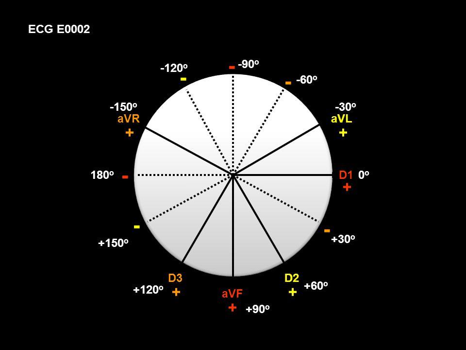 ECG E0002 D1 aVF D2 aVL D3 aVR + + + + + + - - - - - - 0o0o +30 o +60 o -30 o -60 o -90 o +90 o +120 o -120 o +150 o -150 o 180 o