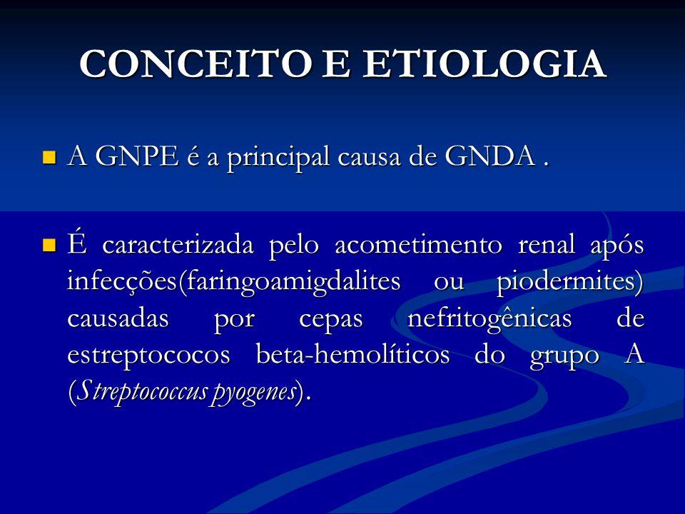 CONCEITO E ETIOLOGIA A GNPE é a principal causa de GNDA. A GNPE é a principal causa de GNDA. É caracterizada pelo acometimento renal após infecções(fa