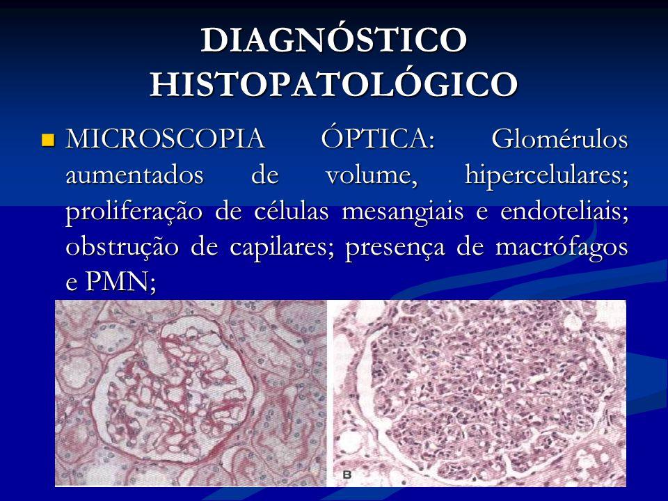 DIAGNÓSTICO HISTOPATOLÓGICO MICROSCOPIA ÓPTICA: Glomérulos aumentados de volume, hipercelulares; proliferação de células mesangiais e endoteliais; obs