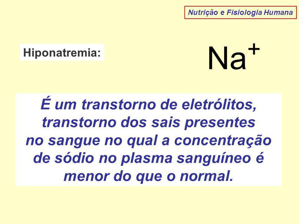 Nutrição e Fisiologia Humana Hiponatremia: É um transtorno de eletrólitos, transtorno dos sais presentes no sangue no qual a concentração de sódio no plasma sanguíneo é menor do que o normal.