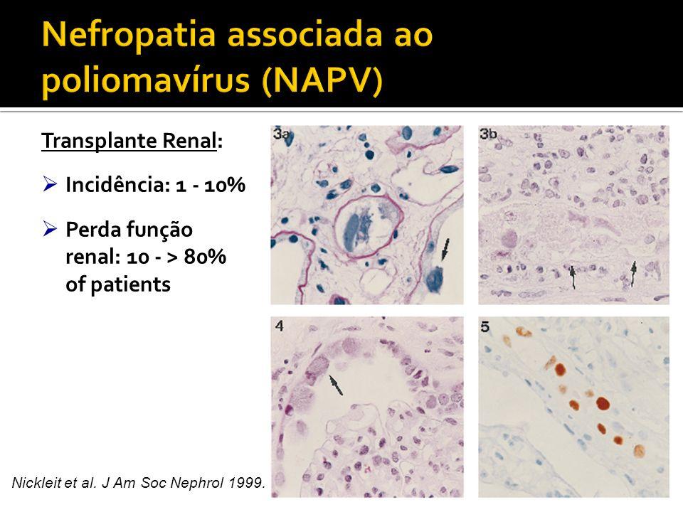  Replicação BKV  Outros FR associados:  Intensidade da IS  Tratamento de RA - corticóide, terapia anti-linfocítica (ATG)  Stent ureteral 2  Idoso, sexo masculino, caucasiano  D+/ R – : aumento risco pós-tx?.
