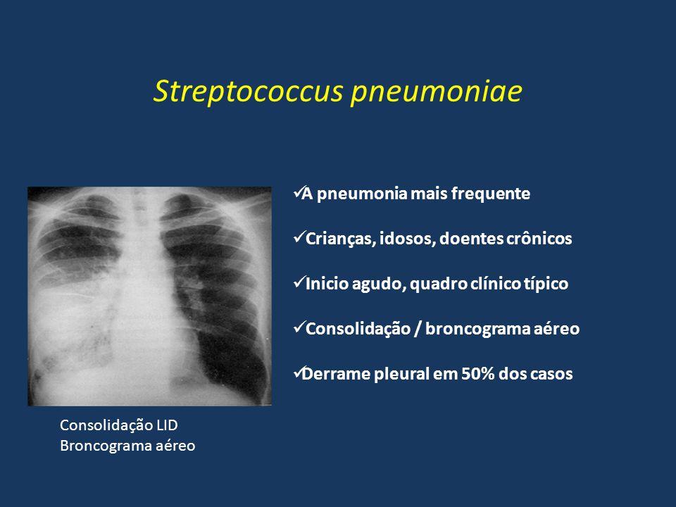 Streptococcus pneumoniae Consolidação LID Broncograma aéreo A pneumonia mais frequente Crianças, idosos, doentes crônicos Inicio agudo, quadro clínico