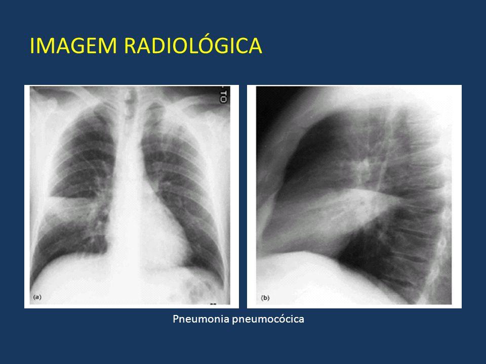 IMAGEM RADIOLÓGICA Pneumonia pneumocócica