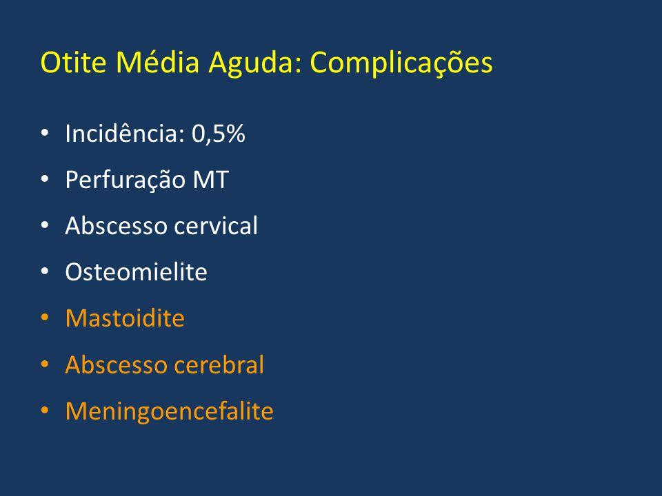 Otite Média Aguda: Complicações Incidência: 0,5% Perfuração MT Abscesso cervical Osteomielite Mastoidite Abscesso cerebral Meningoencefalite