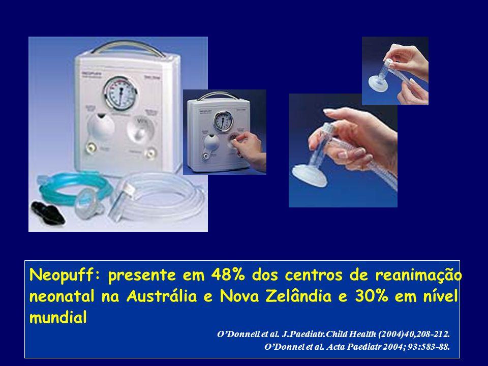 Neopuff: presente em 48% dos centros de reanimação neonatal na Austrália e Nova Zelândia e 30% em nível mundial O'Donnell et al. J.Paediatr.Child Heal