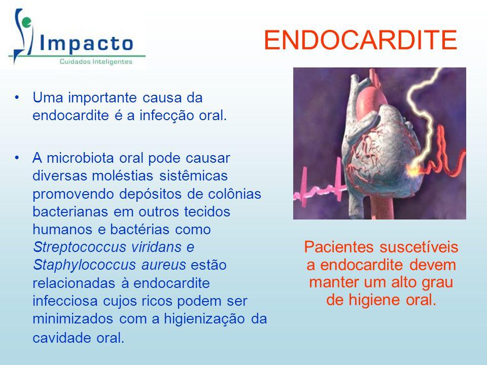 ENDOCARDITE Uma importante causa da endocardite é a infecção oral. A microbiota oral pode causar diversas moléstias sistêmicas promovendo depósitos de