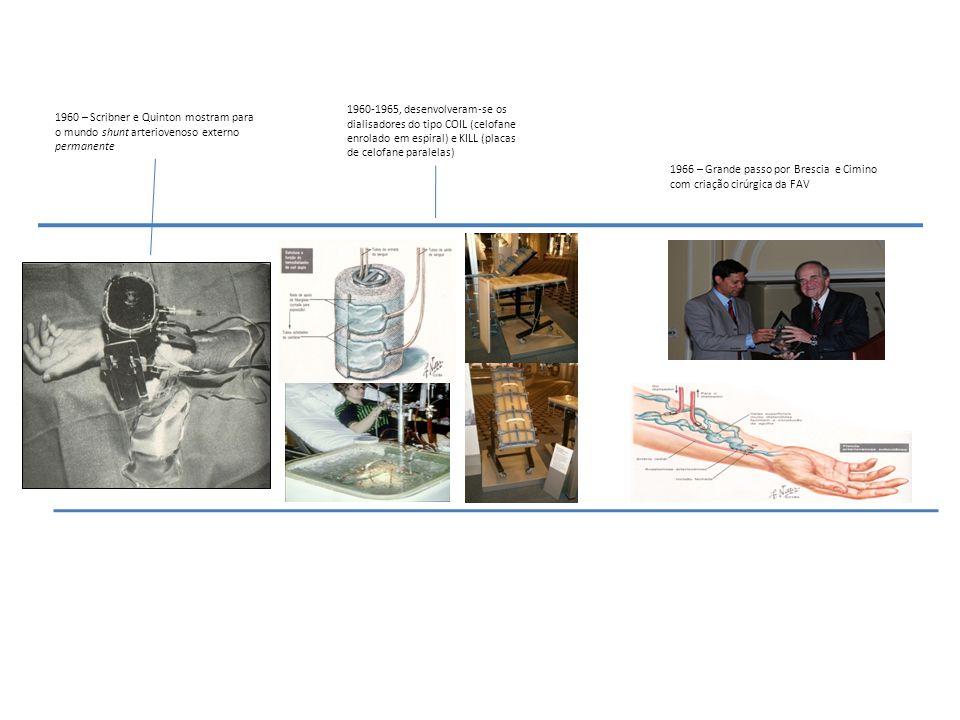 1966 – Grande passo por Brescia e Cimino com criação cirúrgica da FAV 1960-1965, desenvolveram-se os dialisadores do tipo COIL (celofane enrolado em e