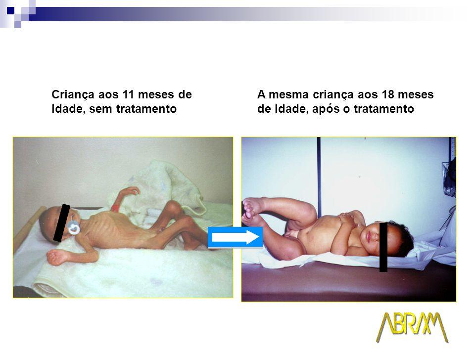 Criança aos 11 meses de idade, sem tratamento A mesma criança aos 18 meses de idade, após o tratamento