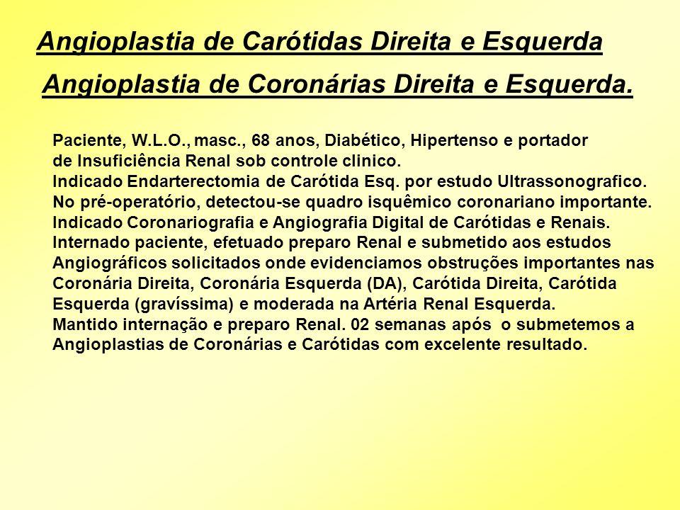 Angioplastia de Carótidas Direita e Esquerda Angioplastia de Coronárias Direita e Esquerda. Paciente, W.L.O., masc., 68 anos, Diabético, Hipertenso e