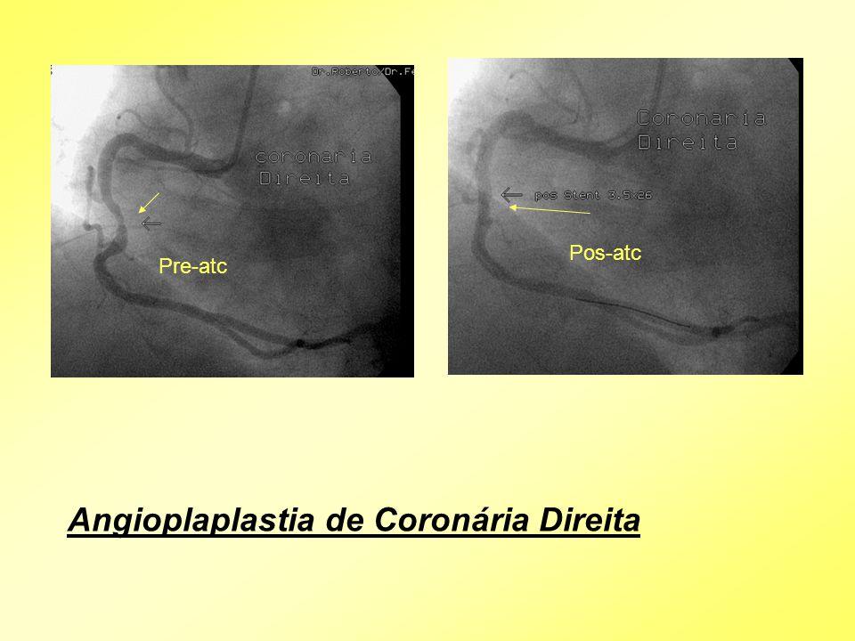 Angioplaplastia de Coronária Direita Pre-atc Pos-atc