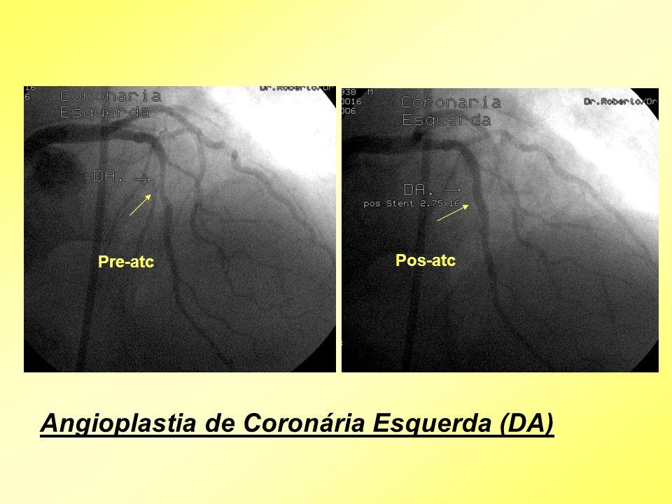 Angioplastia de Coronária Esquerda (DA) Pre-atc Pos-atc