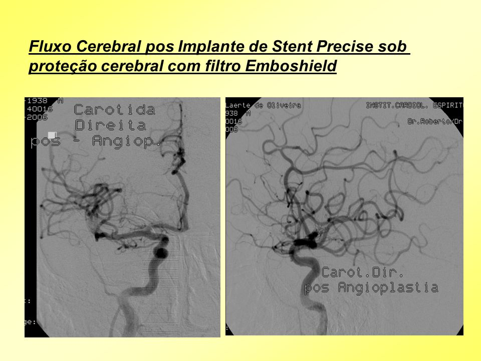 Fluxo Cerebral pos Implante de Stent Precise sob proteção cerebral com filtro Emboshield