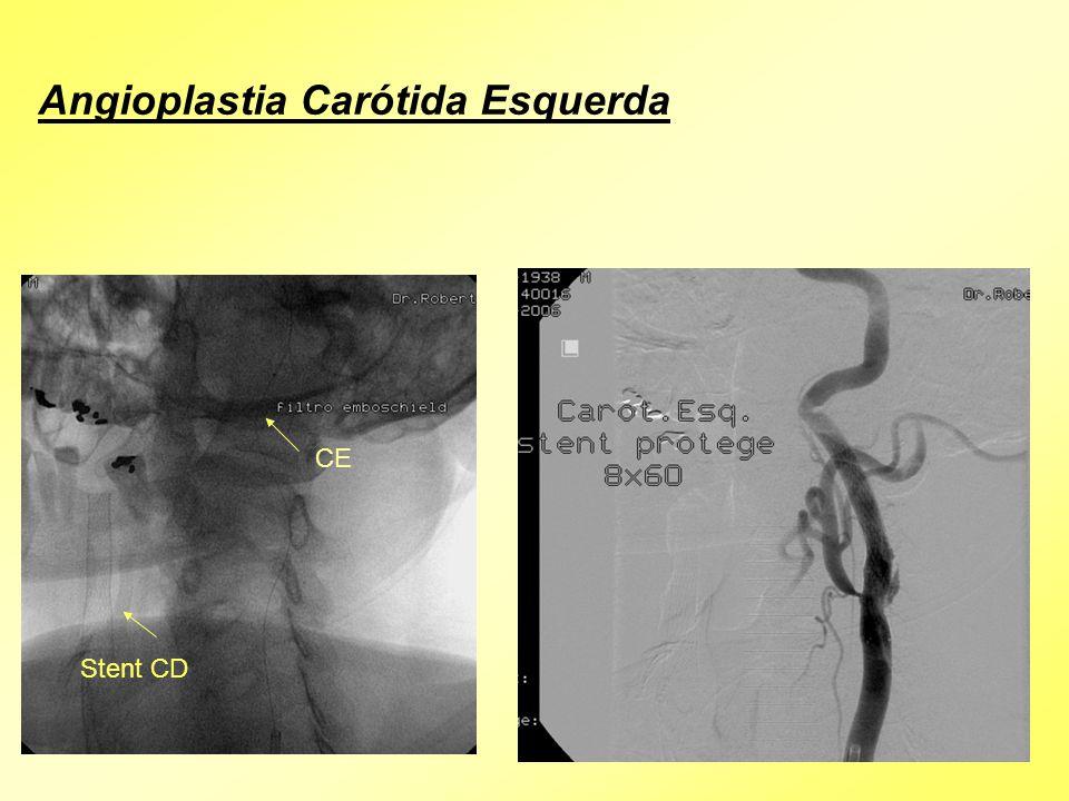 Stent CD CE Angioplastia Carótida Esquerda