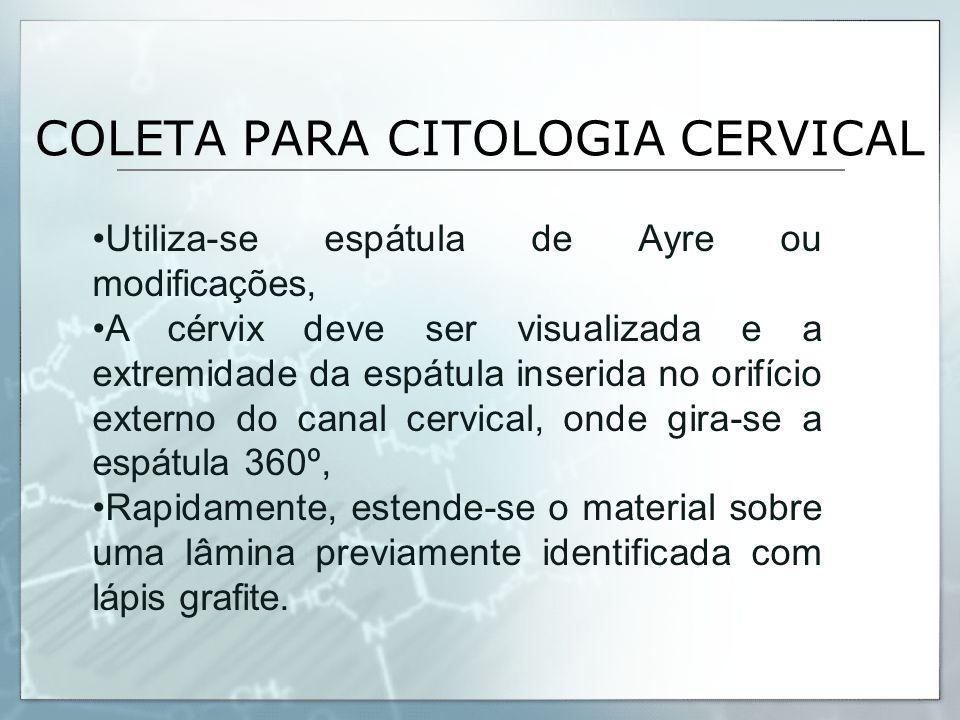 COLETA PARA CITOLOGIA CERVICAL Utiliza-se espátula de Ayre ou modificações, A cérvix deve ser visualizada e a extremidade da espátula inserida no orif