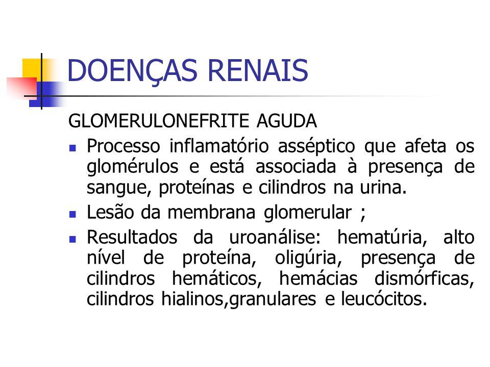 DOENÇAS RENAIS GLOMERULONEFRITE AGUDA Processo inflamatório asséptico que afeta os glomérulos e está associada à presença de sangue, proteínas e cilin