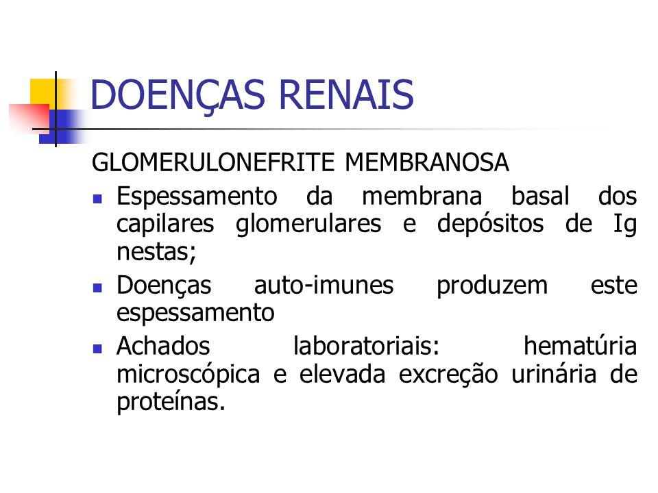 GLOMERULONEFRITE MEMBRANOSA Espessamento da membrana basal dos capilares glomerulares e depósitos de Ig nestas; Doenças auto-imunes produzem este espe
