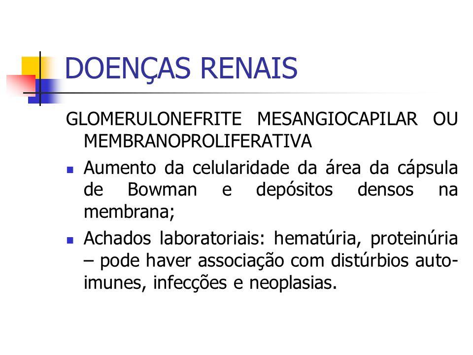 GLOMERULONEFRITE MESANGIOCAPILAR OU MEMBRANOPROLIFERATIVA Aumento da celularidade da área da cápsula de Bowman e depósitos densos na membrana; Achados