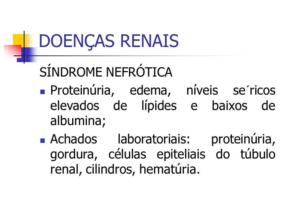 SÍNDROME NEFRÓTICA Proteinúria, edema, níveis se´ricos elevados de lípides e baixos de albumina; Achados laboratoriais: proteinúria, gordura, células
