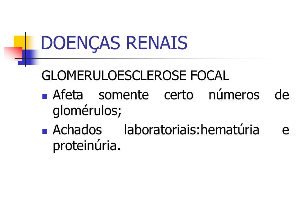 GLOMERULOESCLEROSE FOCAL Afeta somente certo números de glomérulos; Achados laboratoriais:hematúria e proteinúria.