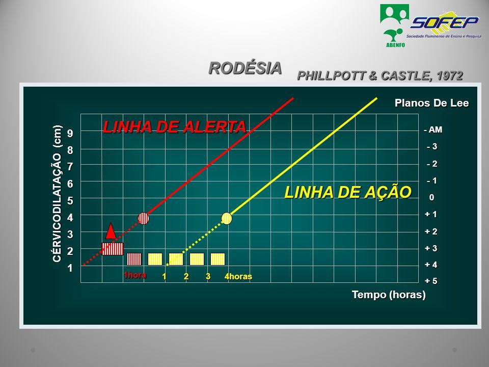 RODÉSIA PHILLPOTT & CASTLE, 1972 1 Tempo (horas) 2 3 + 3 4 + 2 5 + 1 6 0 7 - 1 8 - 2 9 - 3 - AM + 4 + 5 CÉRVICODILATAÇÃO (cm) Planos De Lee 1hora LINH