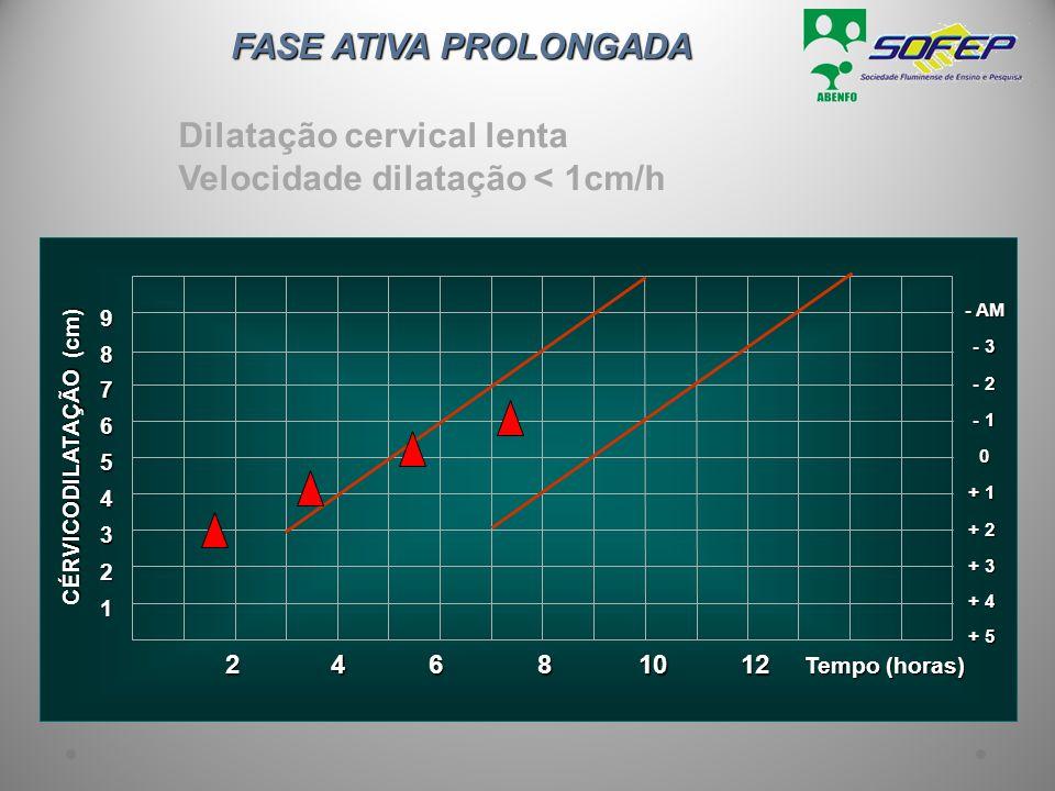 FASE ATIVA PROLONGADA Dilatação cervical lenta Velocidade dilatação < 1cm/h 1 Tempo (horas) 2 3 + 3 4 + 2 5 + 1 6 0 7 - 1 8 - 2 9 - 3 - AM + 4 + 5 CÉR