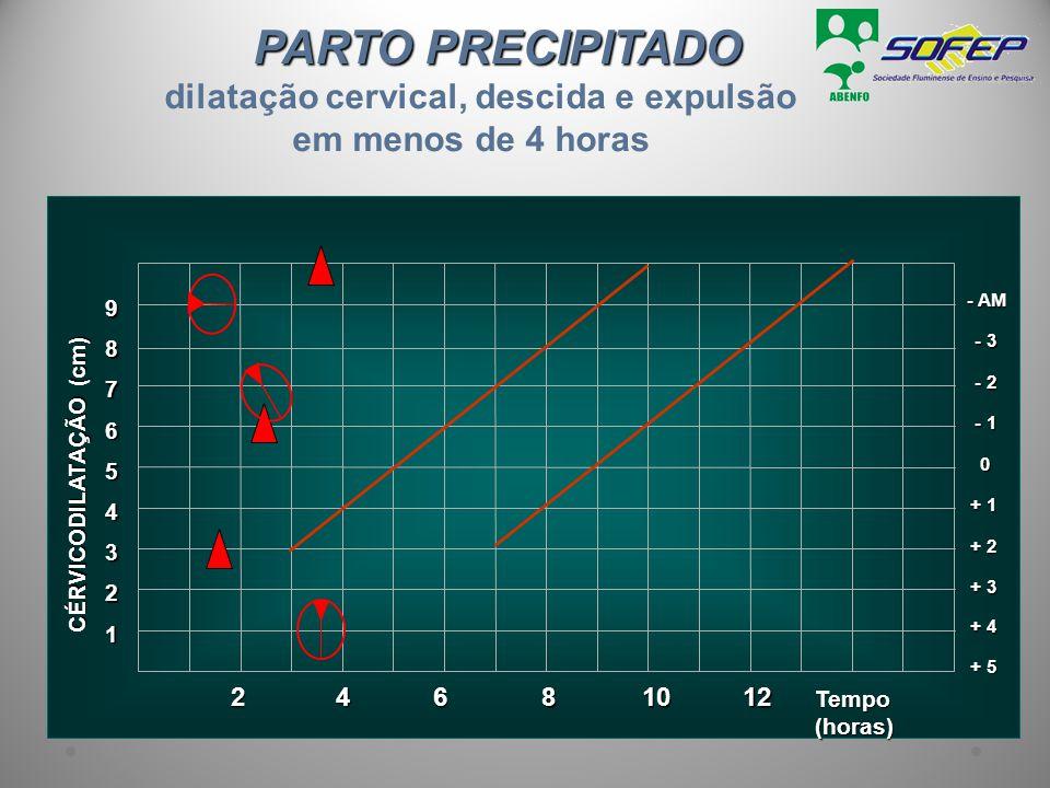 PARTO PRECIPITADO PARTO PRECIPITADO dilatação cervical, descida e expulsão em menos de 4 horas 1 Tempo (horas) 2 3 + 3 4 + 2 5 + 1 6 0 7 - 1 8 - 2 9 -