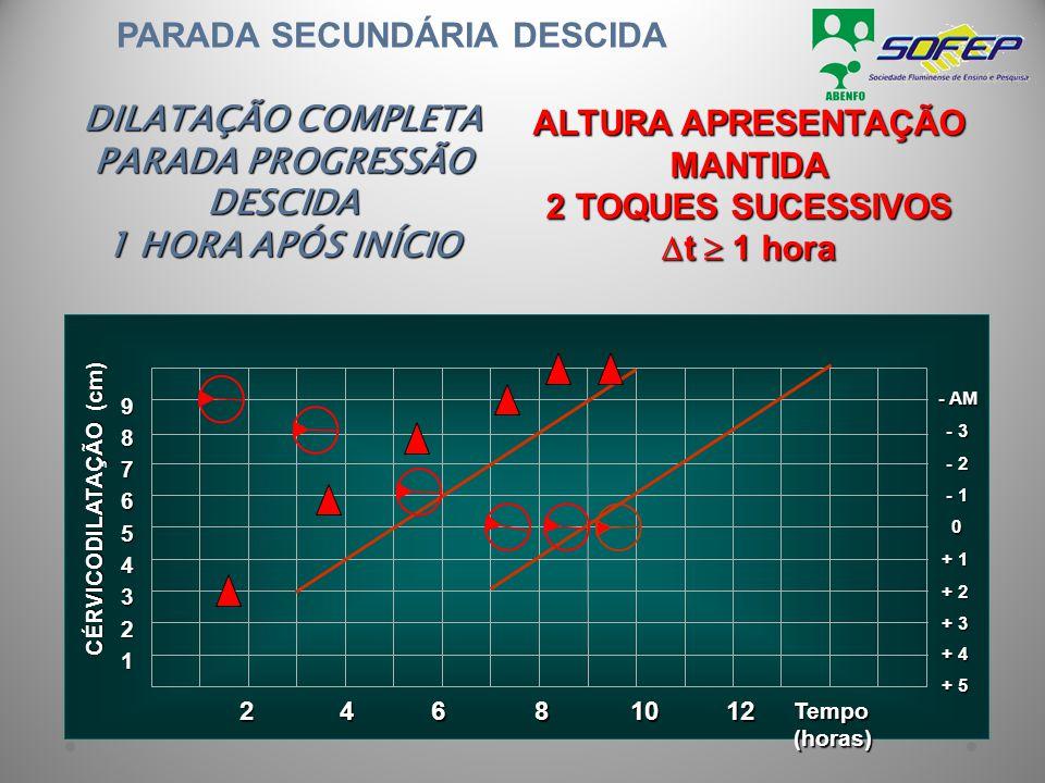 PARADA SECUNDÁRIA DESCIDA DILATAÇÃO COMPLETA PARADA PROGRESSÃO DESCIDA 1 HORA APÓS INÍCIO ALTURA APRESENTAÇÃO MANTIDA 2 TOQUES SUCESSIVOS  t  1 hora