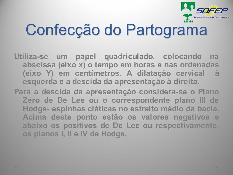 MATERIAL NECESSÁRIO PARTOGRAMA - PAPEL QUADRICULADO 1 Tempo (horas) 2 3 + 3 4 + 2 5 + 1 6 0 7 - 1 8 - 2 9 - 3 - AM + 4 + 5 CÉRVICODILATAÇÃO (cm) Planos De Lee eixo X eixo Y 23456789101